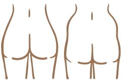 美Bodyタイプ診断Aタイプ
