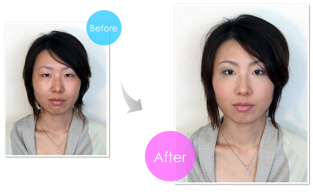 img-before-after-101