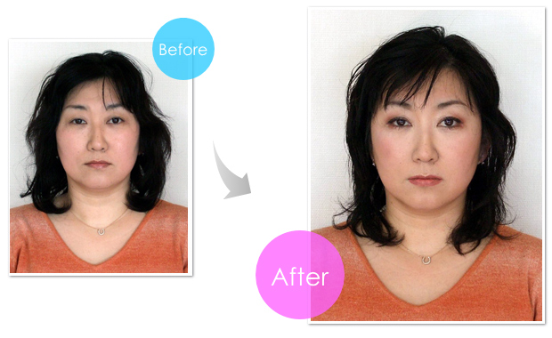 img-before-after-103
