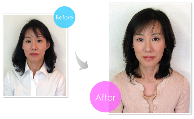 img-before-after-5