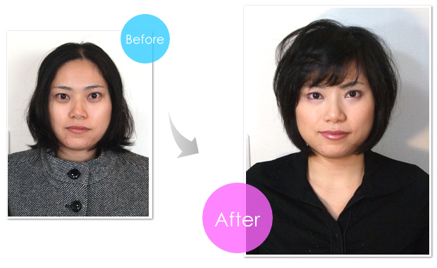 img-before-after-6