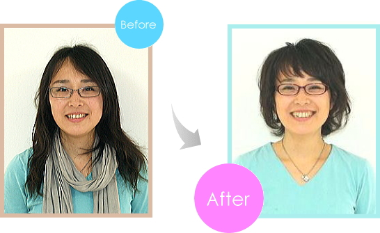 img-before-after-7