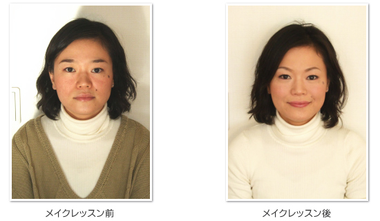 img-before-after